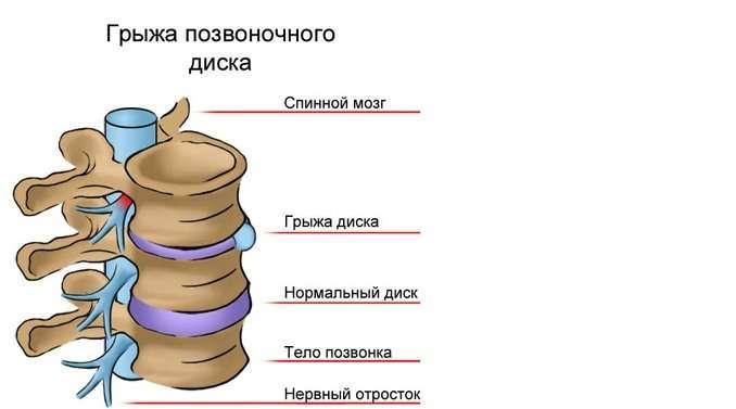схематичное изображение грыжи позвоночника