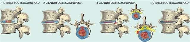Стадии развития остеохондроза позвоночника