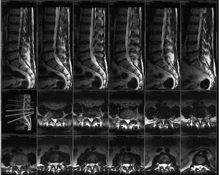 МРТ позвоночника: как проводиться, что показывает, как подготовиться