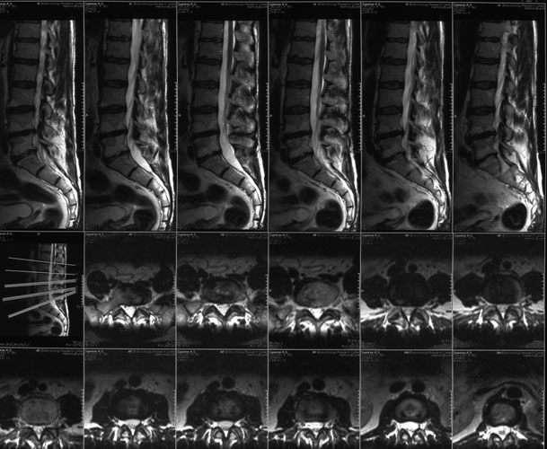 снимок МРТ пояснично крестцового отдела позвоночника