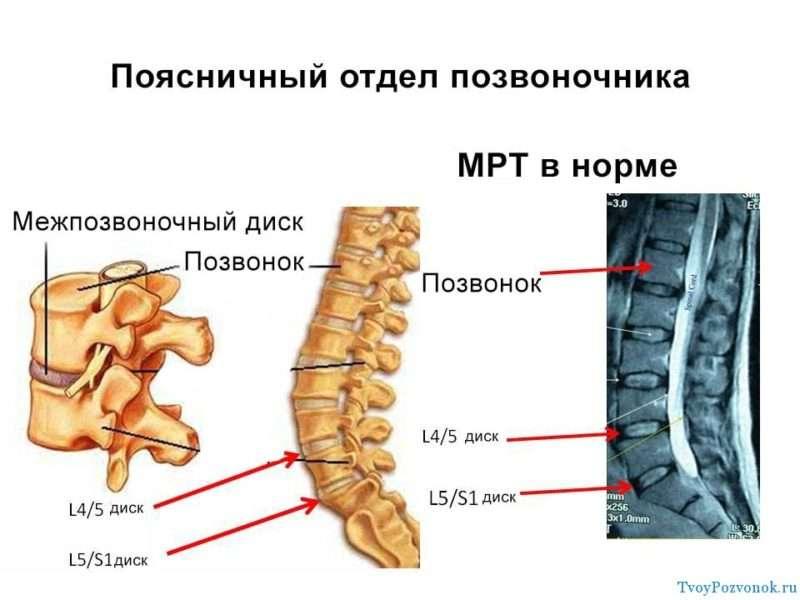 Как прочитать снимок МРТ