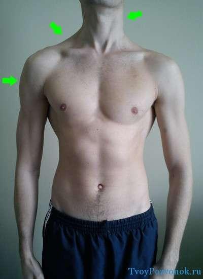 Искривление позвоночника - одно плечо выше другого