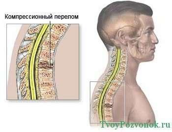 Как выглядит компрессионный перелом позвоночника