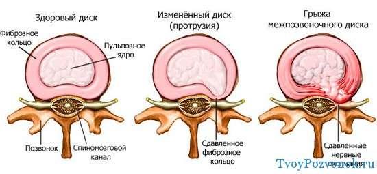 Развитие межрозвоночной грыжи диска