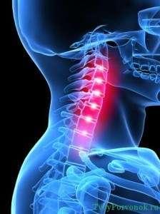 боли при остеохондрозе шейного отдела позвоночника