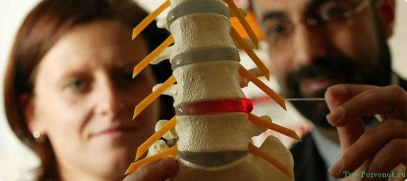 оперативные методы лечения грыжи шейного отдела позвоночника