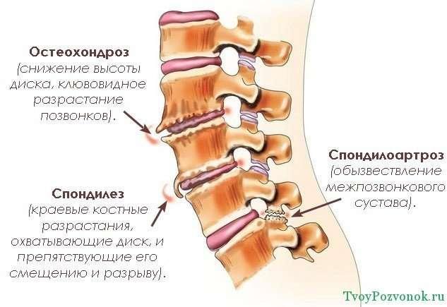 Спондилез поясничного отдела позвоночника: симптомы и лечение