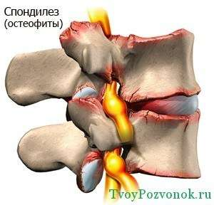 Изображение остеофитов или так же известного спондилеза