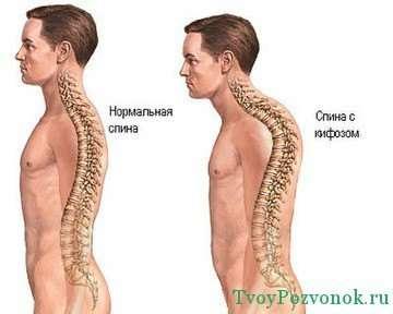 нормальная спина и с грудным кифозом