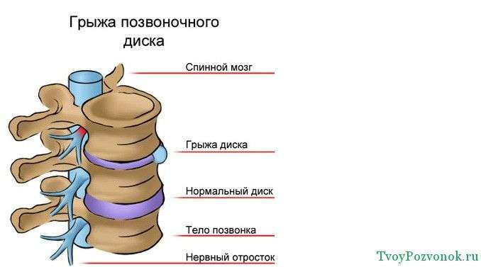 Виды грыжи позвоночного диска
