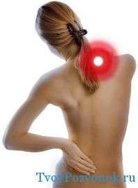 Боли в шее при развитии грыжи