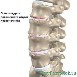 Схематичное изображение остеохондроза поясничного отдела