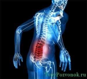Боли в пояснице при дорсопатии