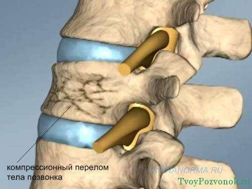 Схематичное изображение компрессионного перелома позвоночника