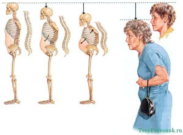 Остеопороз позвоночника - характерные симптомы и лечение
