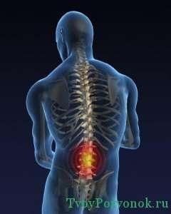 Боли в пояснице при остеохондрозе