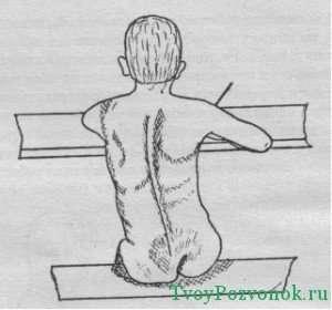 искривления во время долгого неправильного положения спины