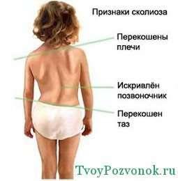 Признаки сколиоза у ребенка