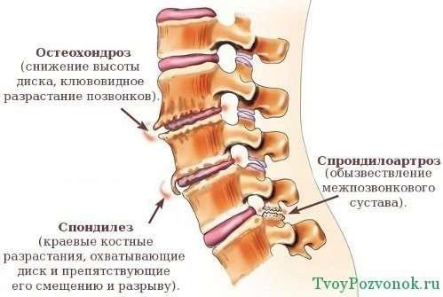 Что делать при сильных болях в спине при месячных