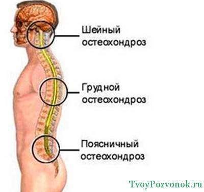 Симптомы опухоли в шейных отделах позвоночника