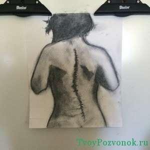 Нарисованное изображение девушки с искривлением позвоночника