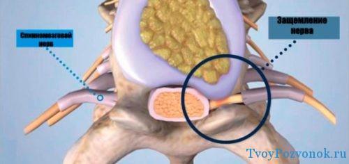 Как выглядит защемленный нерв в позвоночнике