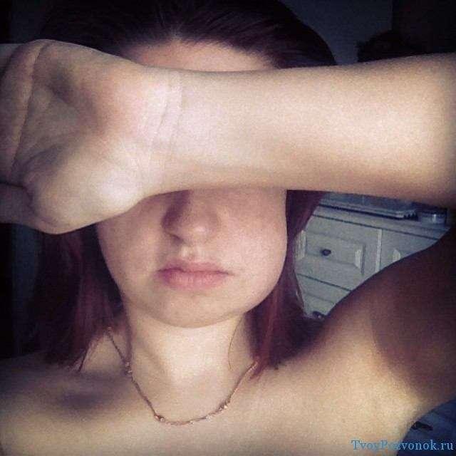 Отек лица при остеохондрозе шеи