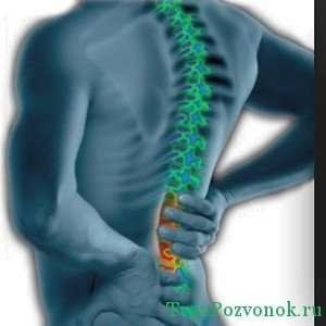 Острые боли в поясничном отделе - признак сколиоза