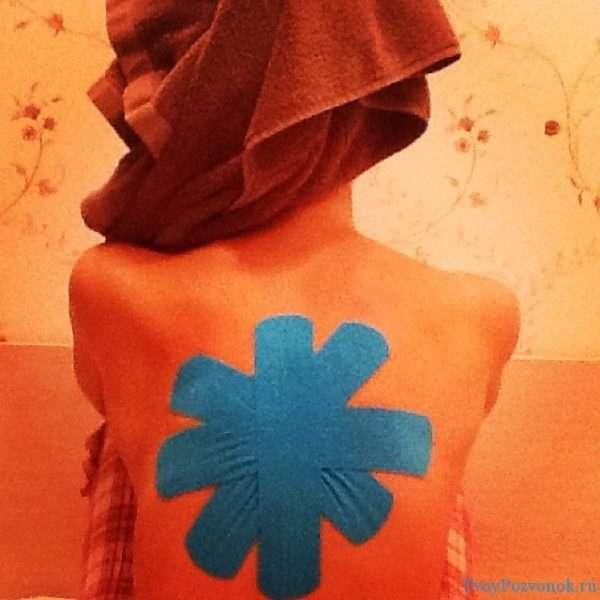 Пластырь на спину из кислоты при острой боли