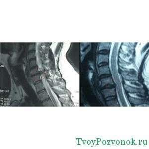 Снимок при остеохондрозе сделанный магнитно резонансной томографии