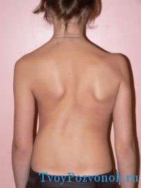 Фото грудного сколиоза у ребенка