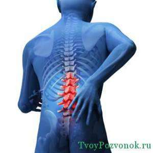Острая боль в пояснице - один из симптомов протрузии