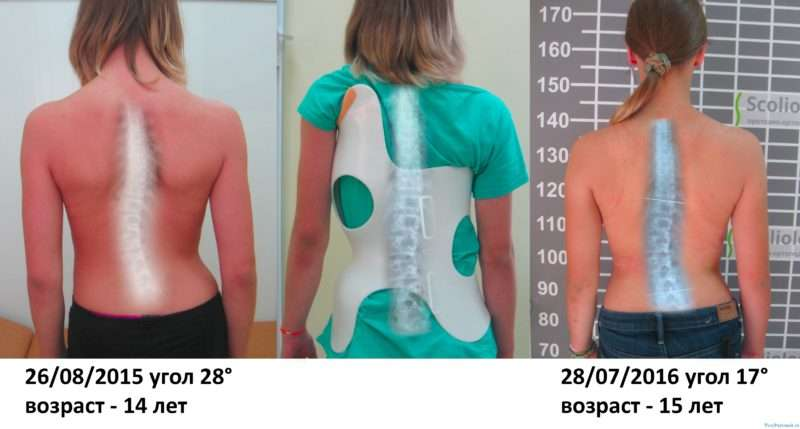 инструкция по применению прибора бимаг в картинках