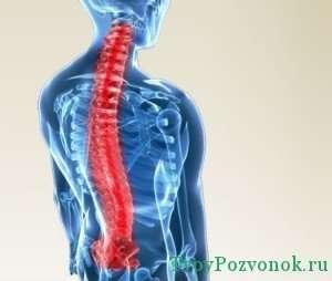Очаги боли в грудном отделе позвоночника