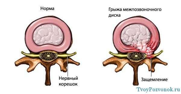Защемление вызванное грыжей диска