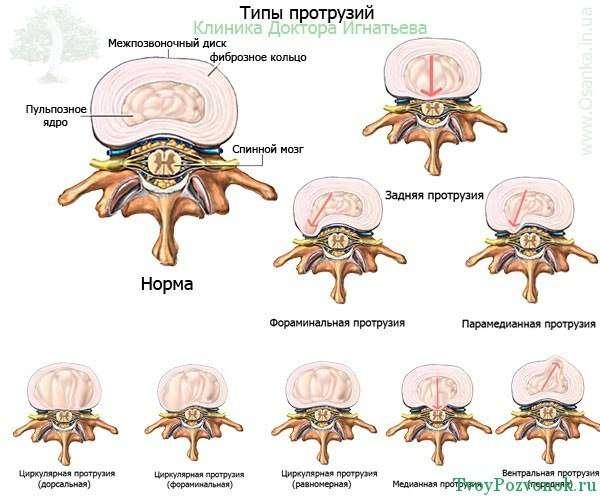 Виды и типы протрузий позвоночника
