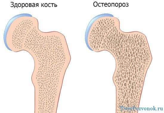 Здоровая кость и кость с остеопорозом