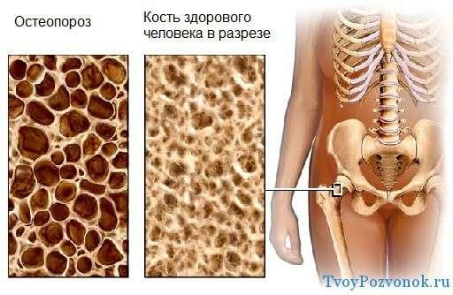 Здоровая кость и остеопороз в разрезе
