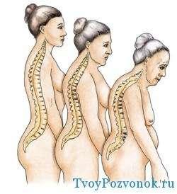 Профилактика остеопороза должна быть осторожной