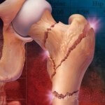 Вероятность перелома костей при остеопорозе повышается в разы