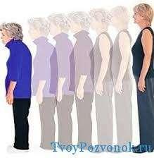 Процесс старения и развития остеопороза женщины