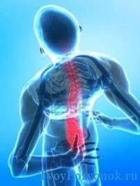 Несколько причин возникновения боли в спине