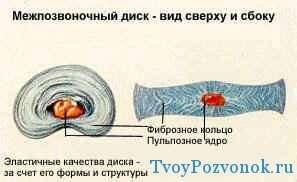 Межпозвоночный диск вид сверху и сбоку