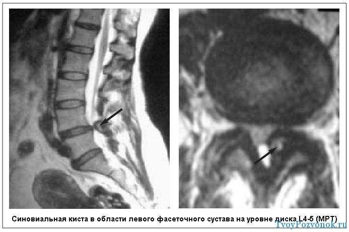 Киста на уровне диска L4-5 - снимок МРТ