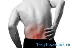Что делать если схватило спину