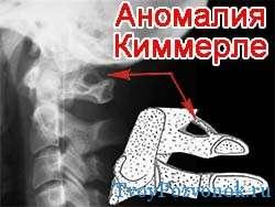 Аномалия Киммерле - что это за заболевание?