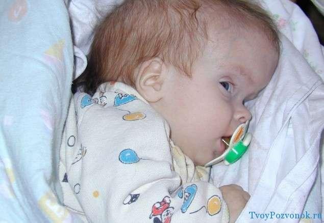 Водянка головного мозга у новорожденного