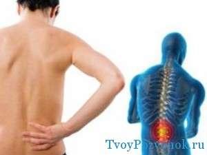 Киста позвоночника - сопровождения болями в спине