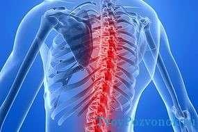 Инсульт спинного мозга - каковы причины и вероятность