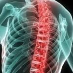 Воспаление позвоночника - с чем это связано?